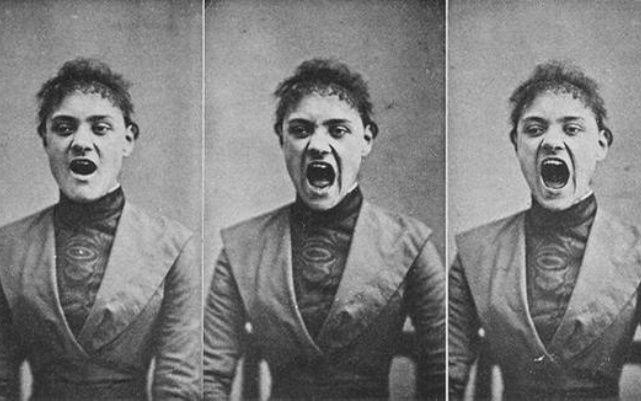 Albert Londe  Пациент с истерией