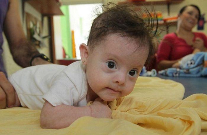 Impulsan una ley para las mamás de bebés salteños con síndrome de Down: El proyecto fue presentado por el diputado provincial Raúl Romeo…