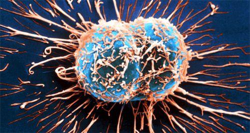Objawy raka – nie lekceważ ich!
