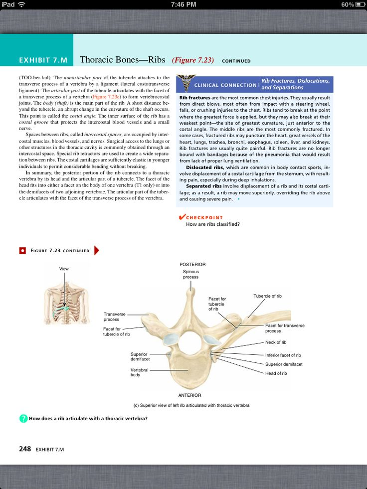 21 best Notes! images on Pinterest   Anatomy, Axial skeleton and ...