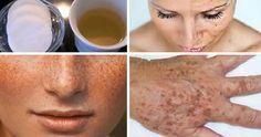 rimedio macchie pelle