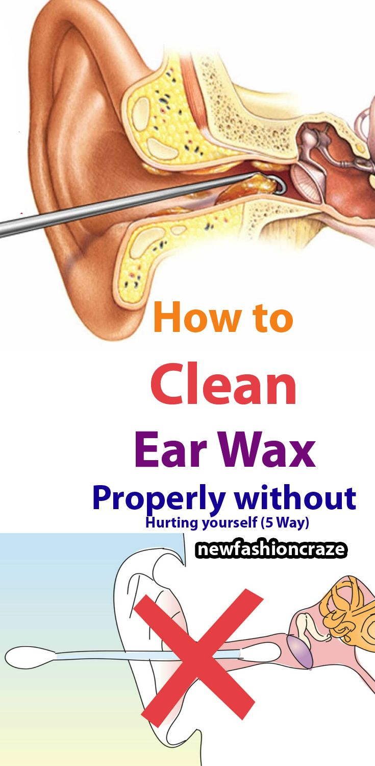 Best 25+ Clean ears ideas on Pinterest | Cleaning your ...