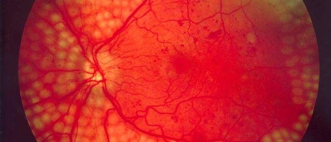 Diabetic Retinopathy Symptoms, Diagnosis and Treatment