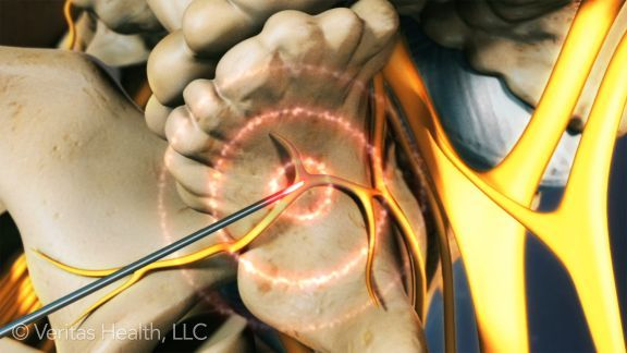 Lumbar Radiofrequency Neurotomy Video