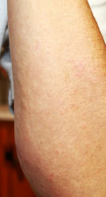 Natural Remedies for Poison Ivy, Oak and Sumac Using Essential Oils