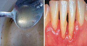 Secretele: Doar o lingurita din aceasta apa de gura facuta in casa te scapa de halena, carii si parodontoza....