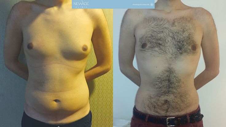Gynecomastia & Vaser Liposuction - The result of 59 day