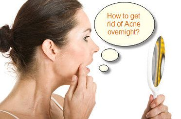 6 Ways on How to Get Rid of Acne - http://www.healthandbeauty23.com/6-ways-on-how-to-get-rid-of-acne/