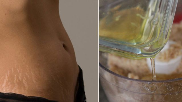 Hamilelik sonrası oluşan ya da sık sık kilo alıp verme sonucu gerilip çatlamış deriyi onarmak mümkün. Hem de evdeki malzemelerle!