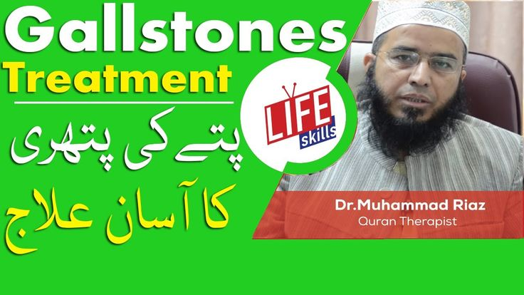 Gallstones Treatment with Quran Therapy / Tib-e-Nabvi by Dr.Muhammad Ria...