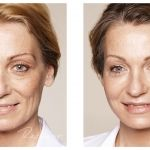 Restylane - makes you look younger, longer.