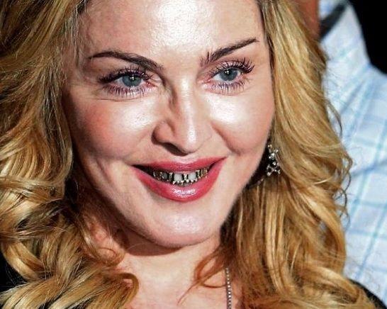 Madonna surpreende e surge com dentes de ouro - Europa - Mundo - O POVO Online