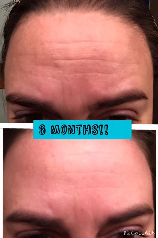 How's this for results? #Nerium AD 30-60% improvement guaranteed! http://maggieschmid.nerium.com/