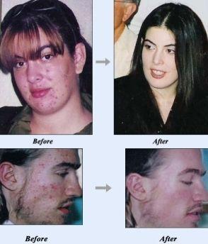 Is there a natural Acne cure that works?  au pire le meilleur traitement médical que j'ai vue c'est un antibio topique le dalacin merveille