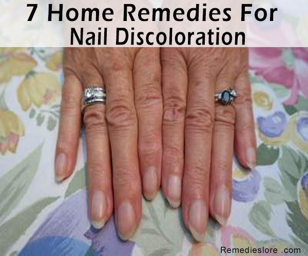 7 Home Remedies for Nail Discoloration