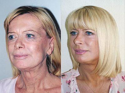 Organic Facelift Composition: Facial Aerobics Present An Exceptional Non-Invasive Facelift