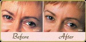 Wrinkles reduction therapy