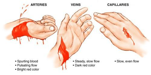 How stuff bleeds... I feel like I am going to need this information for more than one story.