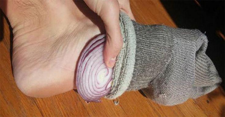 Po dnešku budete chodiť spať každú noc už len s cibuľou v ponožkách