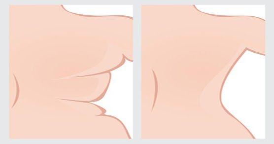¿Detesta la idea de ponerse un bikini o una camiseta ajustada debido a la protuberancia que aparece en la espalda?  El Michelin, la grasa que se derrama por encima y por debajo de los tirantes del sujetador, es algo que muchas mujeres temen; de hecho, muchas mujeres usan ropa holgada para ocultar esa  antiestética grasa dorsal.