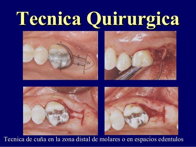 Tecnica QuirurgicaTecnica Quirurgica  Tecnica de cuña en la zona distal de molares o en espacios edentulos