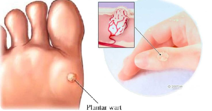 1 simple ingredient will removeTags &Warts can be painful and the sooner you can be rid of them, the better.