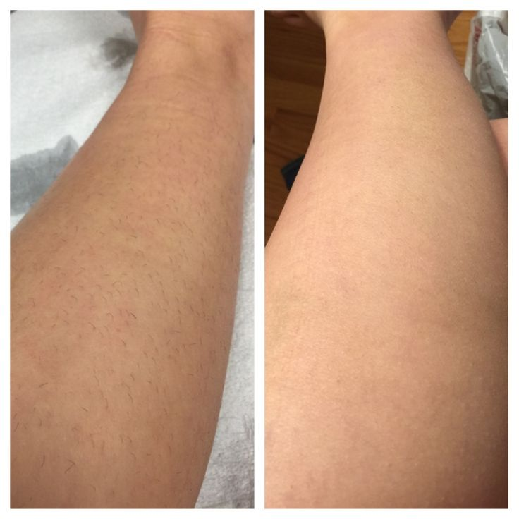 Lower Leg Before And After First Laser Hair Removal The -3187
