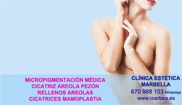 MICROPIGMENTACIÓN DE LA AREOLA>>::;Tratamiento cicatrices post reduccion pechos en Málaga y Marbella or Córdoba.