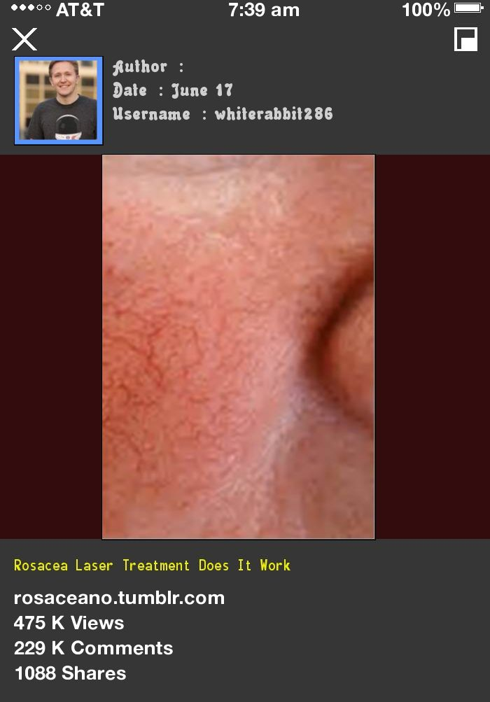 Rosacea Laser Treatment Does It Work 224535 - Rosacea Free Forever.