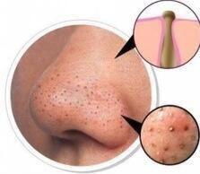 Cómo eliminar espinillas de la piel con bicarbonato de sodio http://www.labioguia.com/como-eliminar-espinillas-de-la-piel-con-bicarbonato-de-sodio/