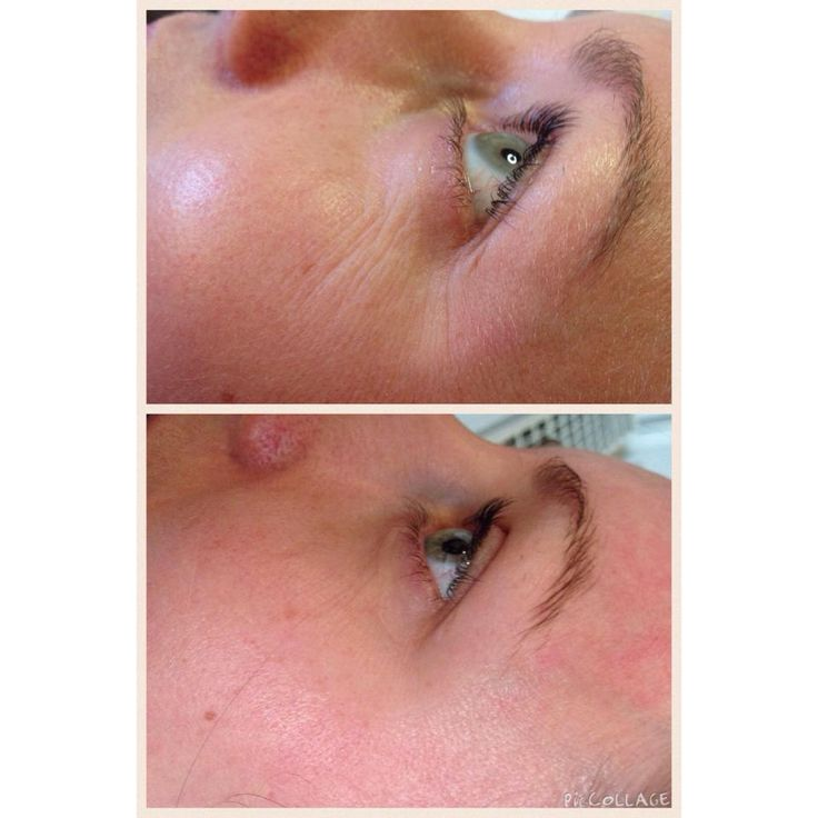 Look at the difference following 1 Dermatude treatment! There's no denying it really does work!