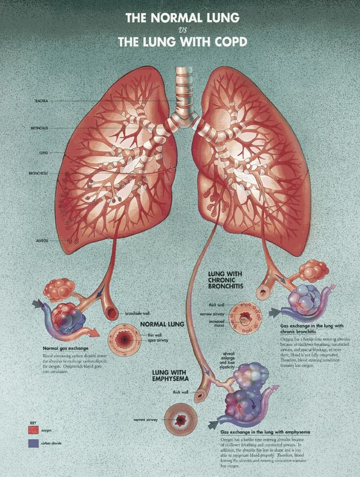 27 best COPD images on Pinterest | Respiratory system, Respiratory ...