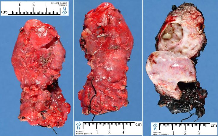 pancreatitis medicine and linden high school Chronic, or long-term, pancreatitis is an inflammation of your  high blood levels  of calcium, which is called hypercalcemia a high level of.