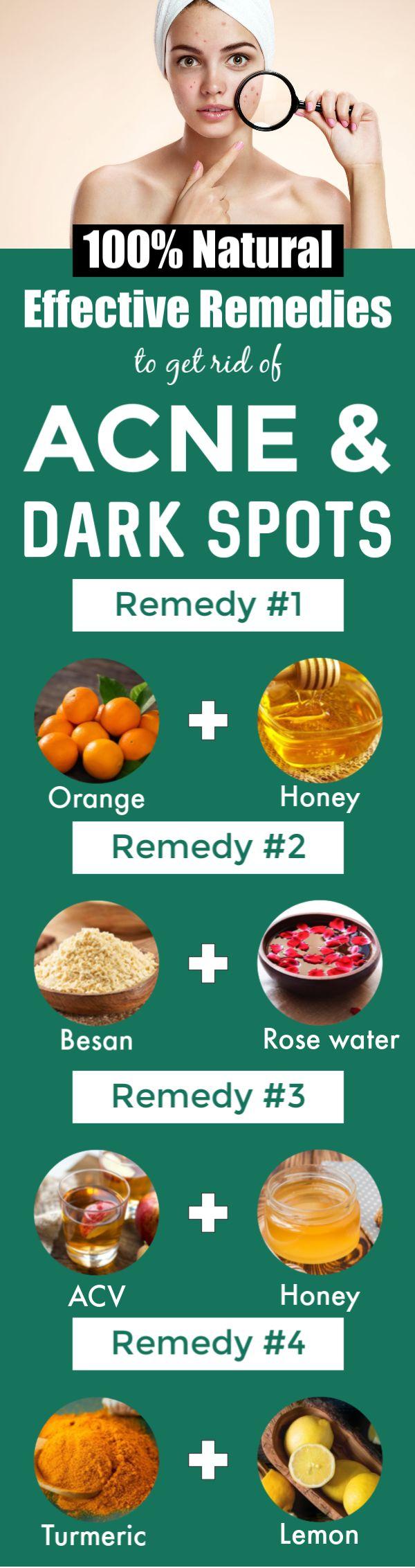 So entfernen Sie Akne, Pickel und dunkle Flecken mit natürlichen Hausmitteln