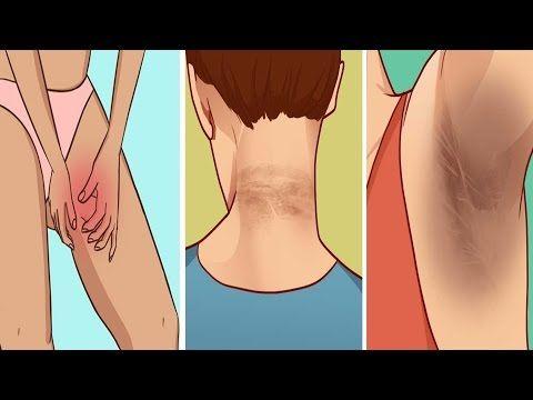 Retire las manchas oscuras en el cuello, las axilas y la entrepierna , resultados en 15 minutos! - YouTube