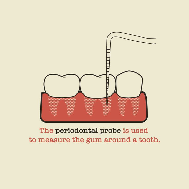 Periodontal Probe Measurements AT EVERY 6 MONTH CHECK...