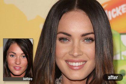 The Best: Megan Fox, Best Celebrity Plastic Surgery