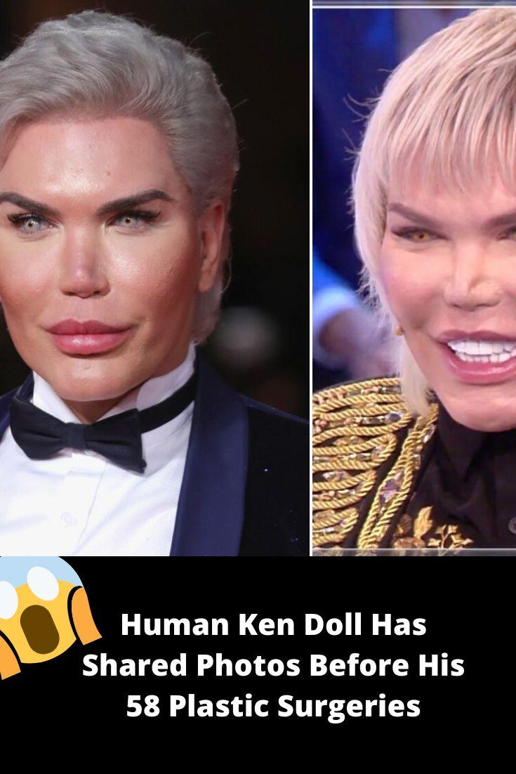 Human Ken Before Surgery