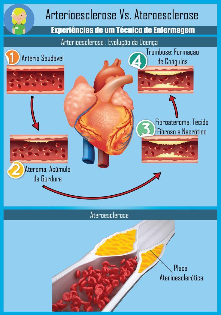 arterioateroesclerose.png
