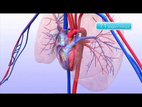 Hartritmestoornis. Hier is het slaan van het hart verstoort en slaat het harder, zachter of onregelmatig dan normaal. Dit word gemerkt als een gevoel dat het hart op hol slaat, maar anderen noemen het een drukkend gevoel op de borst of een licht gevoel in het hoofd. Het wordt veroorzaakt door bijvoorbeeld ouderdom, een eerder hartinfarct, te snel werkende schildklier of een aangeboren hartafwijking. Mogelijke behandelingen zijn medicijnen, een pacemaker of bijvoorbeeld een operatie. (Tom)