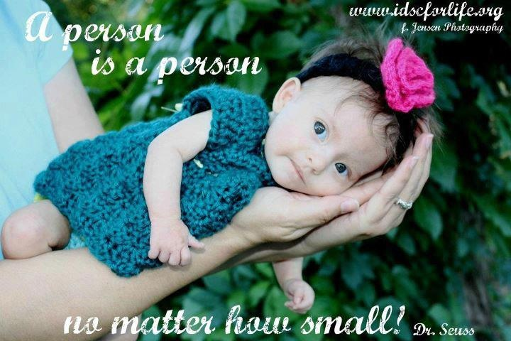 A little Down's Syndrome baby that WASN'T aborted.