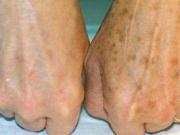 Les veines sur les pieds ont crevé le traitement