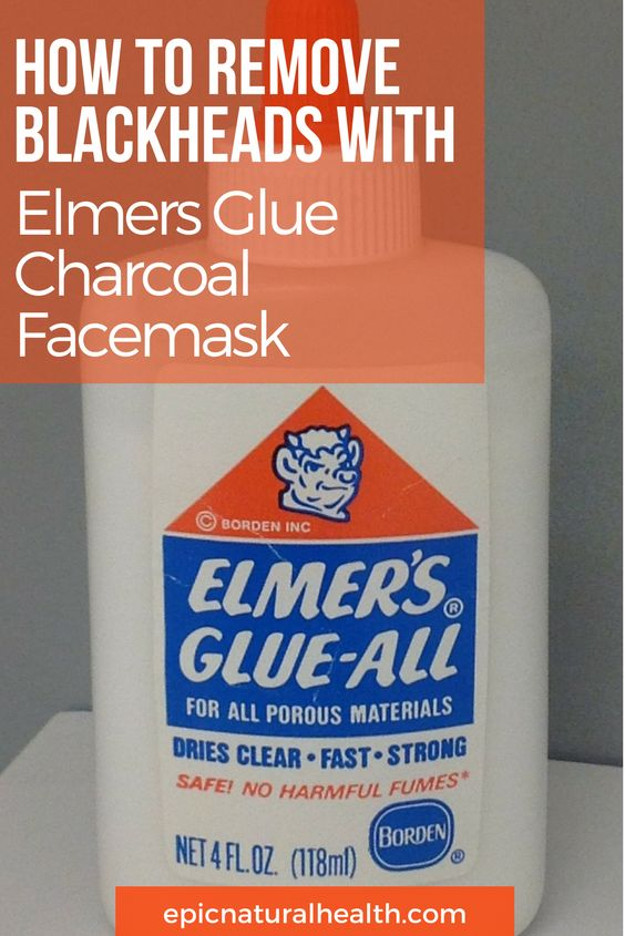 How To Remove Blackheads With Elmers Glue Charcoal Facemask If you're looking for a DIY blackhead treatment that claims to keep your pores and skin glowing and blackhead free, then check out this method. It includes a common household ingredient that we have all worked with during our lives: Multi-functional liquid glue such as Elmer's Glue.