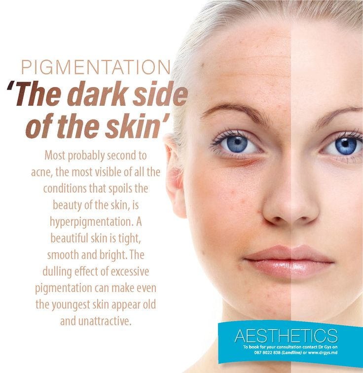 #Pigmentation: 'The dark side of of the #skin' Most probably second to #acne, the most visible of all the conditions that spoils the beauty of the skin, is hyperpigmentation. A beautiful skin is tight, smooth and bright. The dulling effect of excessive pigmentation can make even the youngest skin appear old and unattractive. For more information or bookings contact hello@drgys.com #Aesthetics #DrGys