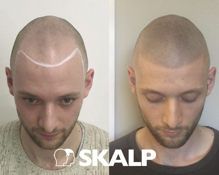 Find the solution to thinning hair, receding hairlines and male pattern baldness with scalp micropigmentation medical hairline tattoos. scalp micro pigmentation