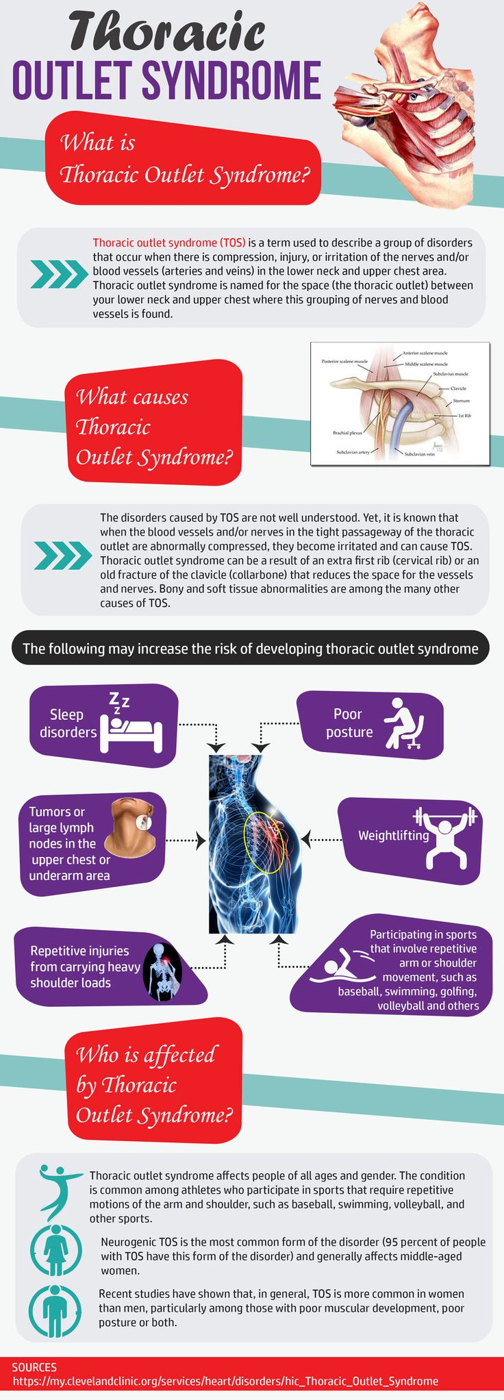 Neck, shoulder, and arm pain are very common. Thoracic Outlet Syndrome is  a compression of neuromuscular structures that supply the arm and may be  involved in your symptoms.