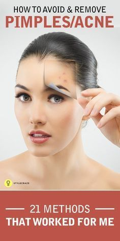Here are 21 effective ways given on how to avoid pimples. Follow for a ...