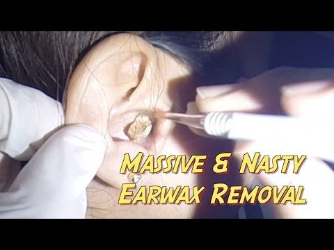 how to clean ear wax at home video