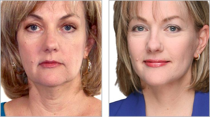 Exercise facial online