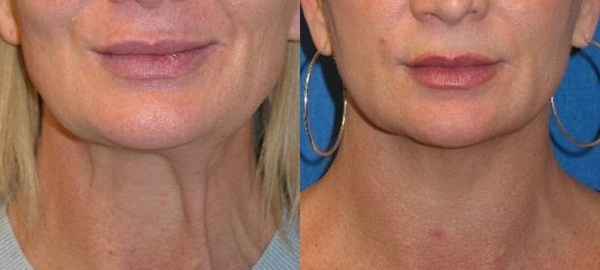 Ulthera Before and After Non-Surgical Facelift Gallery - San Jose | Reviance (800) 444-3223